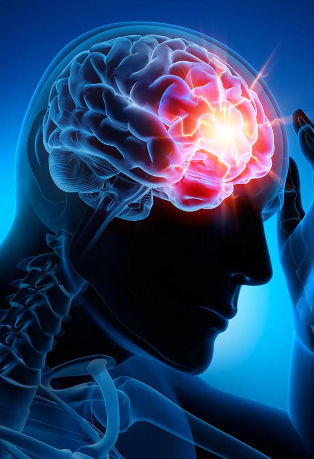 Treatments for Headaches Sutton