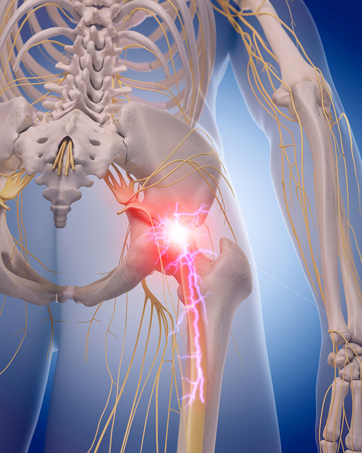 Sciatica Treatment Sutton