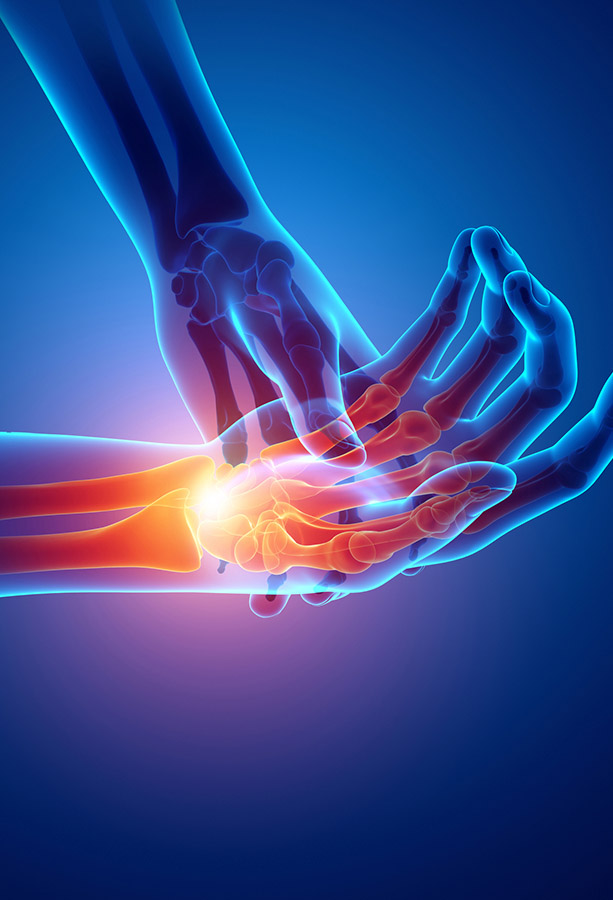 Hand and Wrist pain Treatment Sutton